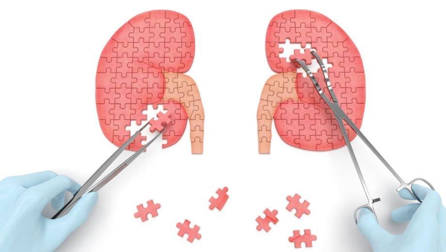 Goede zorg voor patiënten met chronische nierschade
